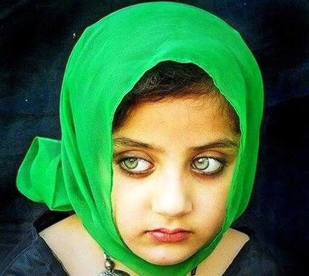 دختر بچهای که زیباترین چشمهای جهان را دارد / عکس